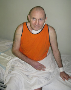 Beketov in the hospital after being brutally beaten. (CPJ)