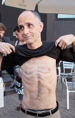 Journalist José Luis García Paneque is emaciated after years of mistreatment in Cuban prisons. (AP/Arturo Rodriguez).