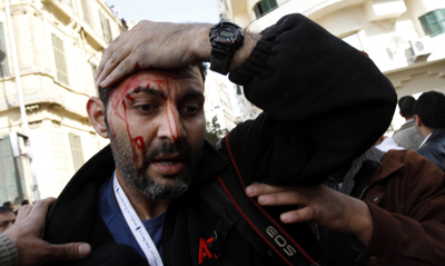 AP photographer Khalil Hamra is injured in Tahrir Square on Thursday. (AP Photo/Mohammed Abed)