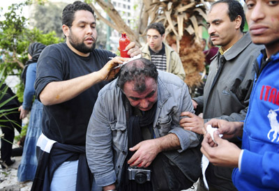 SIPA Press agency photojournalist Alfred Yaghobzadeh is treated by anti-government protesters after being wounded during clashes in Cairo. (AP)