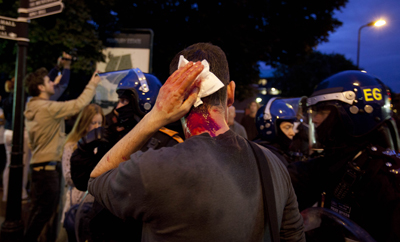 A photographer holds his head after he was attacked by protesters in east London on Monday. (AP/Karel Prinsloo)