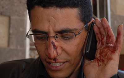 BBC Arabic correspondent Abdullah Ghorab, after the attack on Wednesday. (AFP/Gamal Noman)