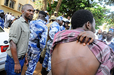 Anatoli Luswata shows injuries from a police beating. (AFP)