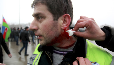 Journalist Rashid Aliyev was injured in clashes between protesters and police in the city of Quba yesterday. (Reuters/Abbas Atilay)
