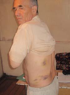 На фото от 23 июня 2010 года Аскаров демонстрирует следы жестоких избиений во время содержания под стражей. (Нурбек Токтакунов)