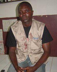 Atayi Ayi, after the attack. (AFreePress)