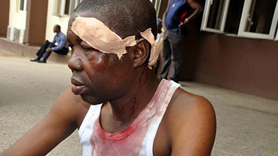 Benedict Uwalaka after his attack. (Premium Times)