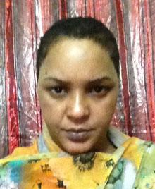 Hundosa was found on the side of the road with her head shaved. (Somaya Ibrahim Ismail Hundosa)
