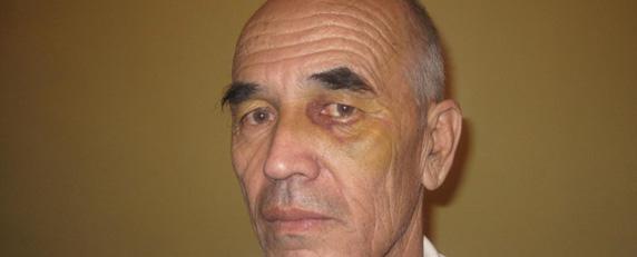 O jornalista Azimjon Askarov, do Quirgustão, foi espancado e torturado sob custódia policial. (Nurbek Toktakunov)