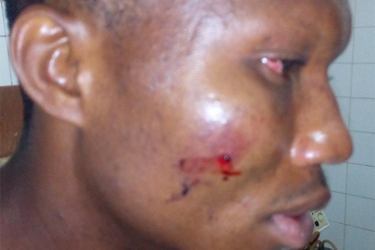 Charles Otu recovers in hospital in Abakaliki, Ebonyi, June 2, 2017. (Courtesy Charles Otu)