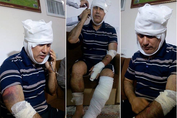 Ibrahim Abbas recovers after five men beat him in Amman on July 10, 2017. (Aso Abbas)
