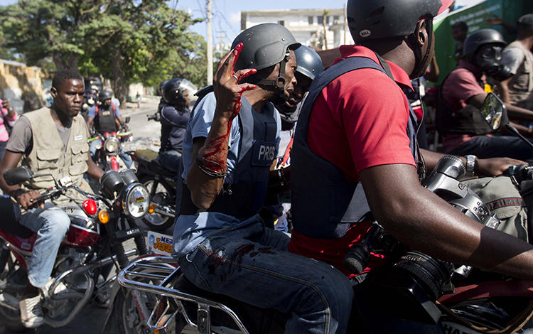 Reuters journalist Robenson Sanon holds up his blood covered arm, after he was shot while documenting clashes between national police and protesters near the presidential palace in Port-au-Prince, Haiti, on February 13, 2019. (Dieu Nalio Chery/AP)
