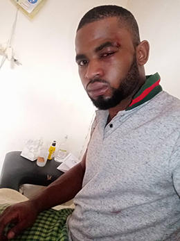 Paul Chouta was treated for stab wounds and bruising after being attacked. (Cameroon Web)