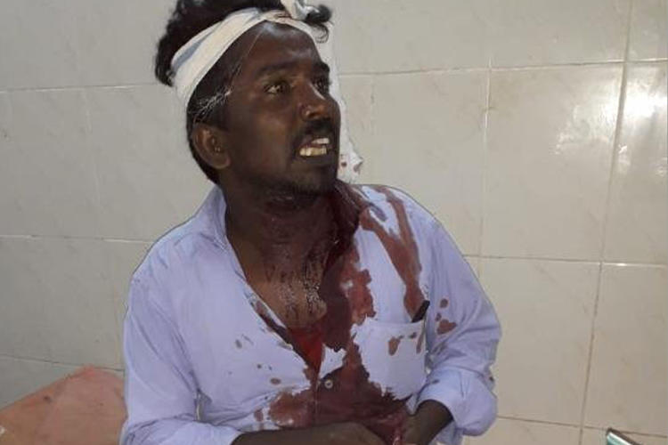 Journalist G. Muthuvel is seen following the attack against him on June 19, 2019. (Image via The News Minute, used with permission)