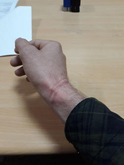 Indents are seen on the wrist of Ahmet Kanbal, after the Mezopotamya News Agency reporter was taken into custody in Izmir on February 9, 2018. (Mezopotamya News Agency/MA)
