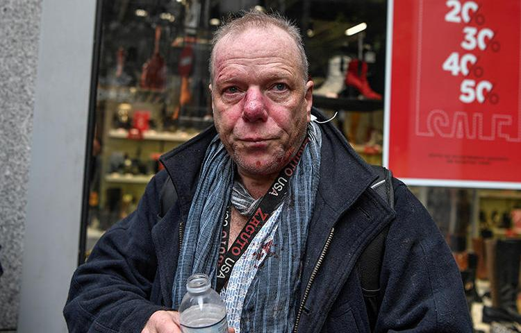 Journalist Thomas Jacobi is seen after being attacked while covering a protest in Athens, Greece, on January 19, 2020. (AFP/Louisa Gouliamaki)