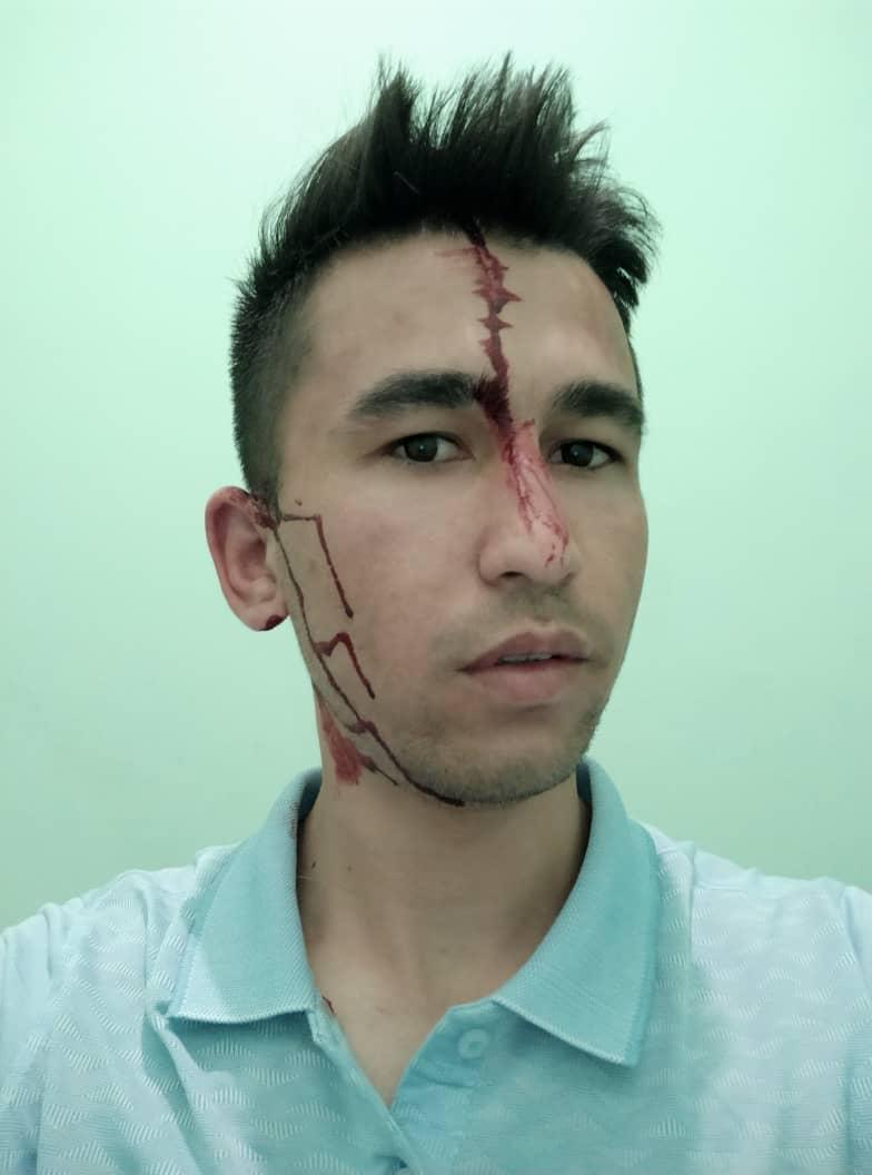 Гурбатов с полученными травмами после нападения. (Фото: Авазмад Гурбатов)